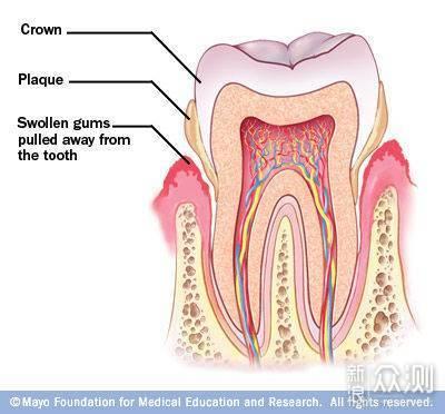 为牙齿健康投资值不值?浅谈如何选购电动牙刷_新浪众测