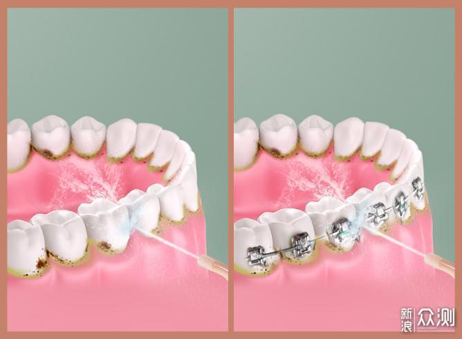 保护牙齿新主张——Moido冲牙器测评_新浪众测